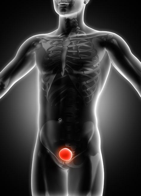 mesane kanseri anatomi goruntusu